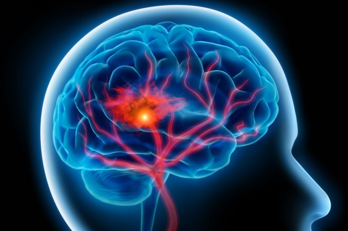 Researchers Build Molecule that Could Significantly Reduce Brain Damage in Stroke Victims